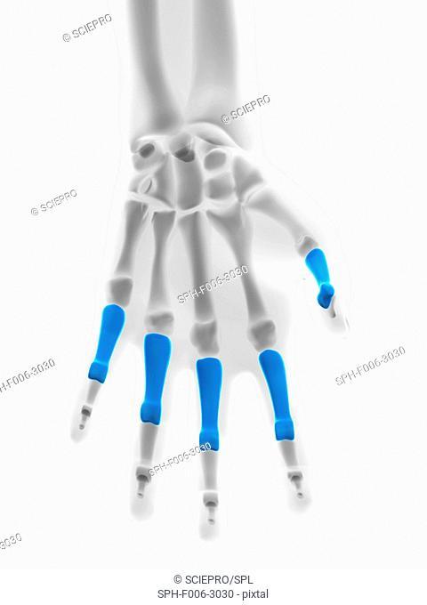 Hand bones. Computer artwork showing the proximal phalange bones