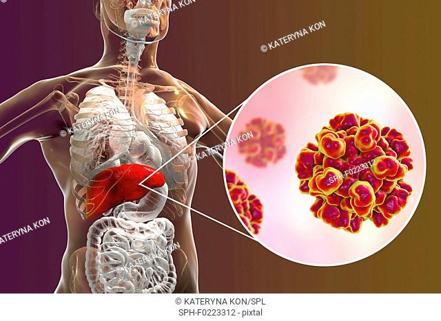 Hepatitis E infection, illustration