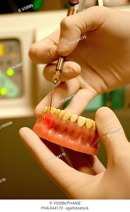 YAP Laser, used for the treatment of periodontal diseases, certain types of dental caries, and for devitalization