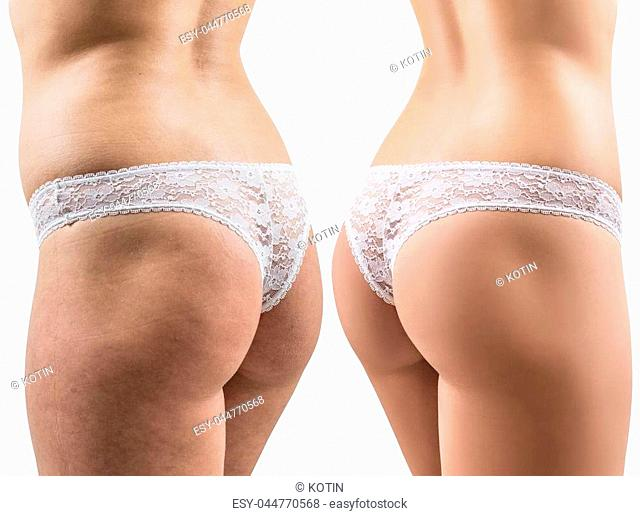 Female buttocks in lace panties before and after treatment. Isolated on white