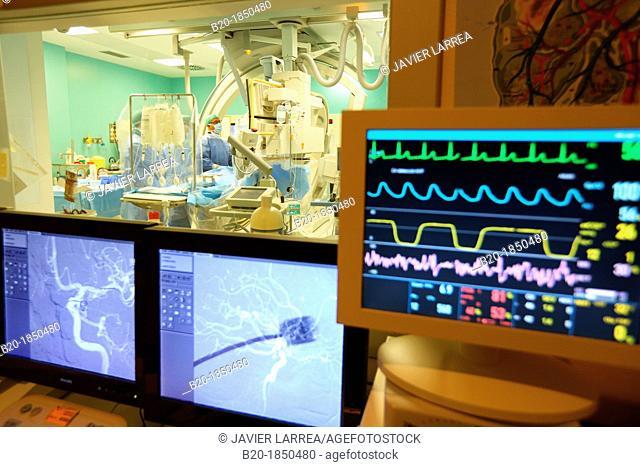 Cerebral aneurysm embolization, Willis polygone Angiography, Interventional Neuroradiology, Radiology Department, Donostia Hospital, San Sebastian, Donostia