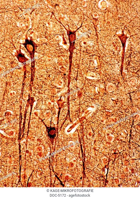Cerebrum rind: Pyramid cells. 250x Photo-Technical Short Cuts: LUMEN = optical microscope, scanning electron microscope = scanning electron microscope