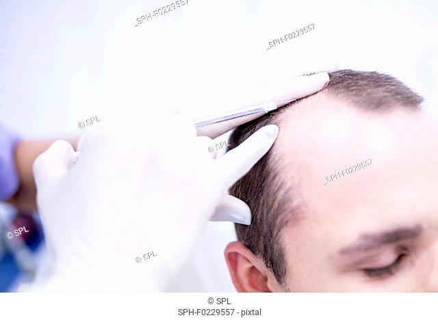 Young man having trichology treatment