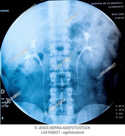 urografia, kidney