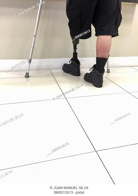 Man using crutches and wearing prosthetic leg in clinic