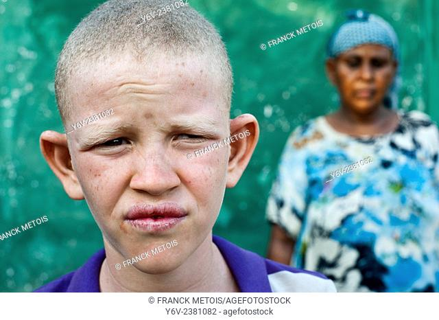 Albino boy with his mother ( Ethiopia)