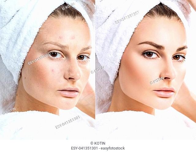 Woman face with bath towel on head before and after treatment