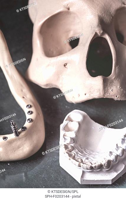 Dental prosthesis and jaw with skull