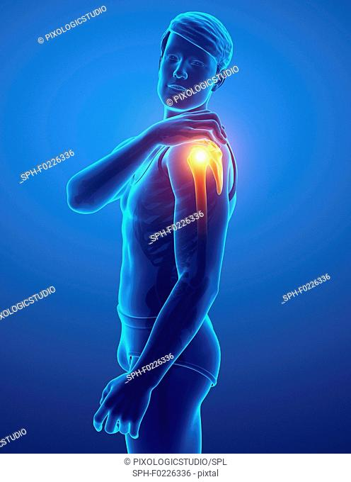 Man with shoulder pain, illustration