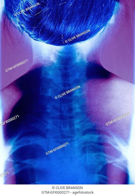 Double exposure X-ray of womans neck and spine