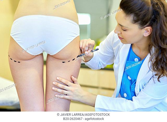 Liposuction. Liposculpture. It consists of aspiration cannulae of body fat deposits established. Before surgery a cartographic mapping of these deposits are...