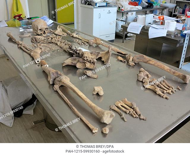 The skeleton of a victim of the 1995 Srebrenica massacre has been laid out on an autopsy table at the identification centre in Tuzla, Bosnia and Herzegovina