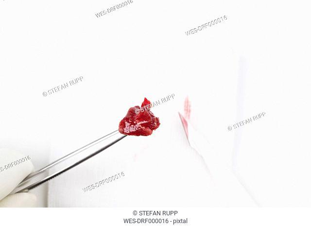 Germany, Freiburg, Blood on tissue sample, close up