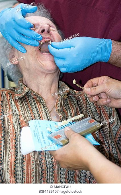 DENTAL CARE FOR ELDERLY PERSON Choice of the definitive prostheses in ceramic