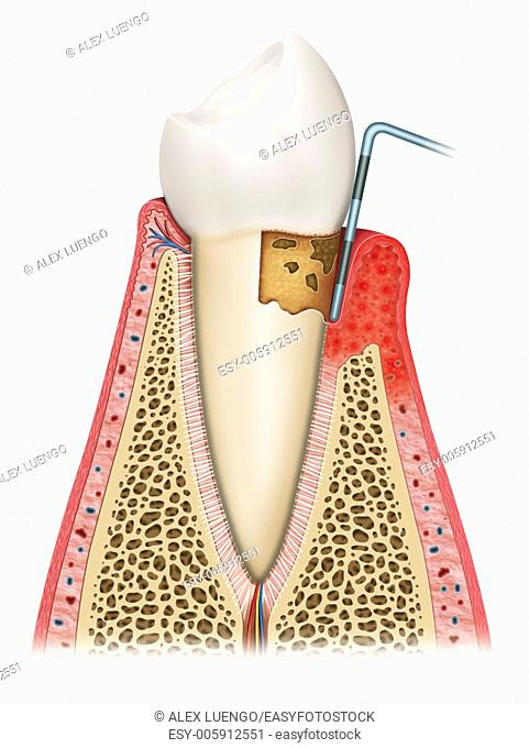 Illustration of the tooth third phase affected by gingivitis, looseness, swelling, infection of the gum and bone deterioration