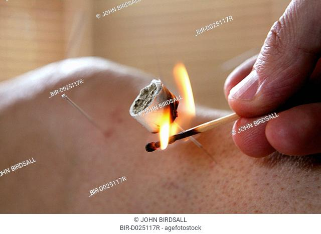 Moxibustion treatment being applied to acupuncture needle