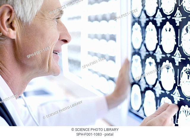 Radiologist studying CT scans