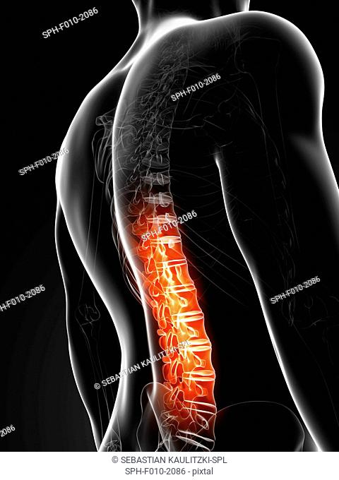 Human back pain, computer artwork