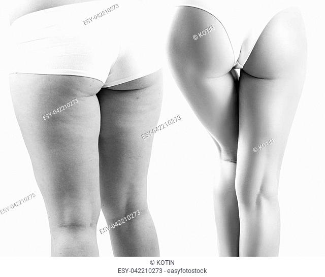 Female buttocks before and after spont and properly food. Isolated on white