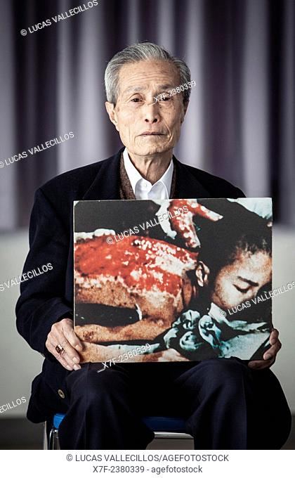 Sumiteru Taniguchi, born in 1929, a Nagasaki Atomic Bomb Survivor, Nagasaki A-bomb sufferers council president, he shows a picture of him 6 months after the...