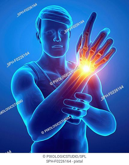 Man with wrist pain, illustration