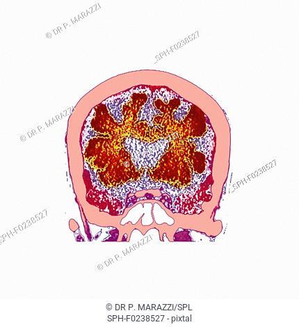 Brain in dementia, CT scan