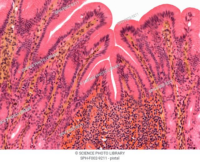 Stomach lining, light micrograph. The stomach lumen is lined by mucous cells. At bottom centre is an accumulation of lymphocytes forming a lymphatic nodule in...