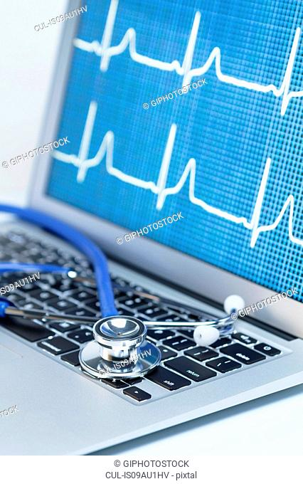Modern cardiology. Acoustic stethoscope on a laptop computer that displays an EKG trace