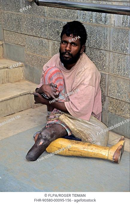 Leprosy, victim begging, Delhi, India