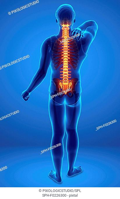 Man with back pain, illustration
