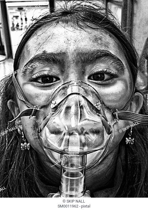 A little girl using a nebulizer
