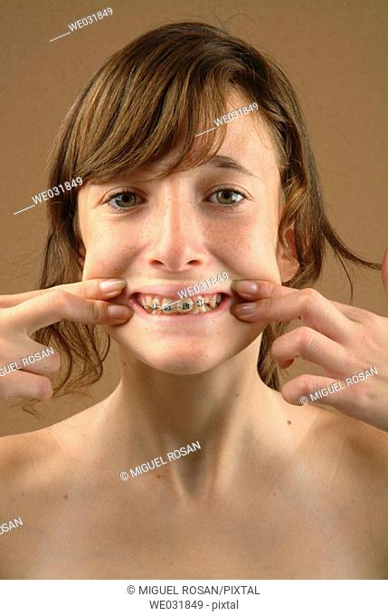 Close up of teenage girl showing her mouth with braces