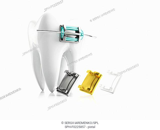 Tooth with bracket, illustration