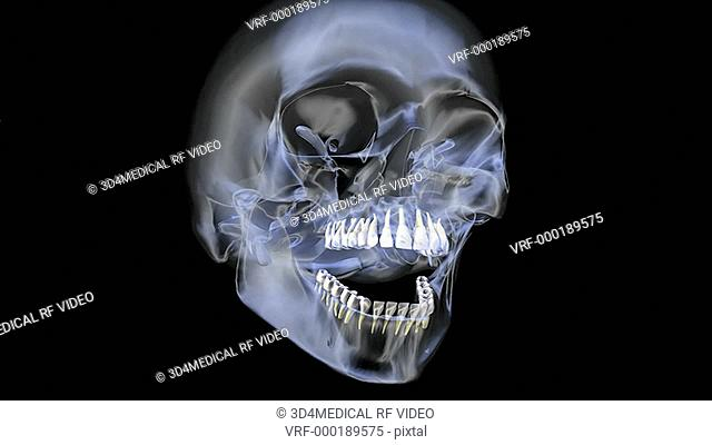 A pan from left to right of an X-ray skull on a black background. The mandible is opening and closing as the camera zooms in on the teeth