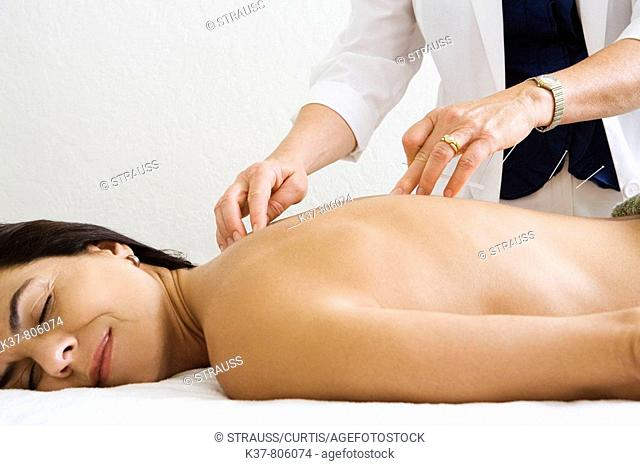 Woman having acupuncture therapy