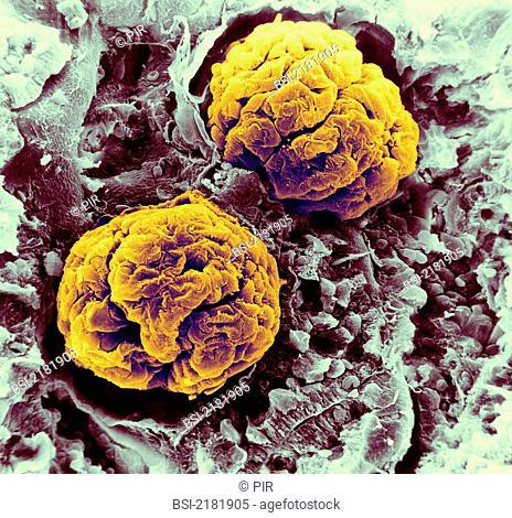 Renal glomerulus rat. SEM x 600