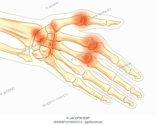 Illustration of a hand suffering from rheumatoid arthritis, with a deterioration of the surface of the bone and cartilage, thickening of the synovial membrane
