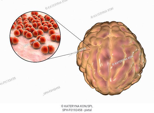 Bacterial meningitis, illustration