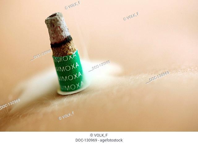 Moxa fŸr adhesive bonding
