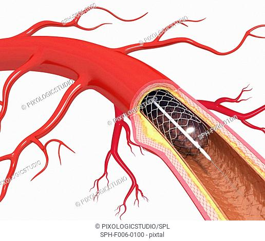 Balloon angioplasty. Computer artwork of a stent being placed in a narrowed blood vessel