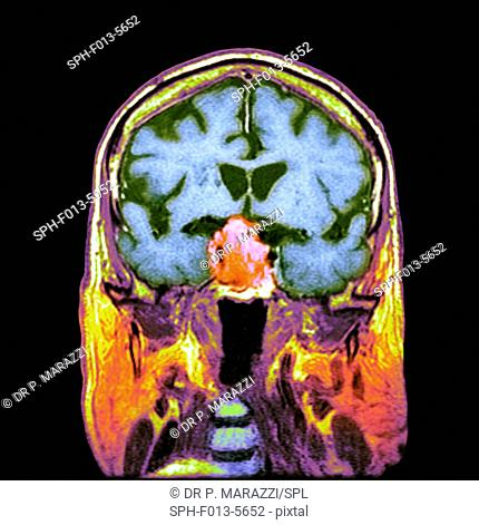 Pituitary tumour. Coloured computed tomography (CT) scan of a section through the brain of an 84-year-old male patient with a tumour (round