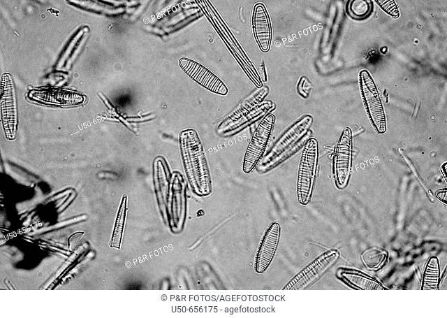 Diatoms, eukaryotic algae, phytoplancton, 400 X  optical microscope, photomicrography , botany
