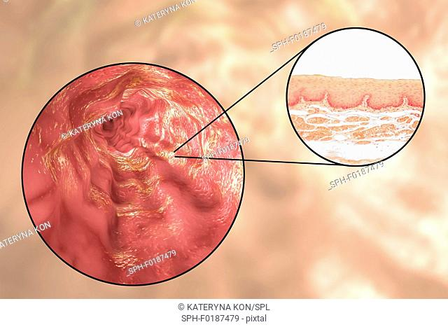 Oesophagus wall. Light micrograph of a section through the human oesophagus, which passes food from the mouth to the stomach