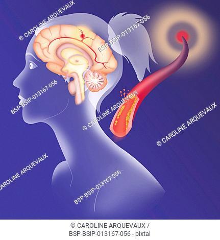 CEREBROVASCULAR NEUROL. DISEASE