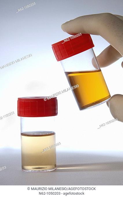 Urine in tube prepared for testing