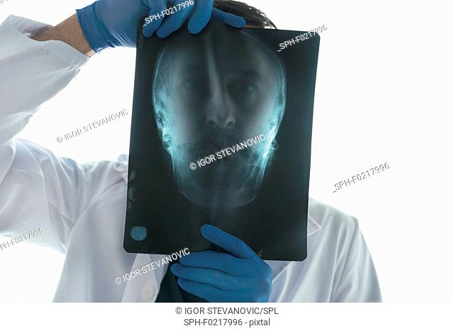 Doctor examining X-ray of the skull