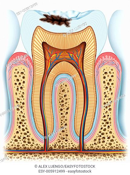 This image teaches us an advanced stage carié which already has delved into the crown of the tooth, it will continue growing as the days go if the patient does...