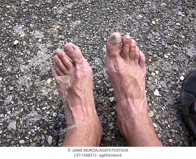 Persons feet with blisters