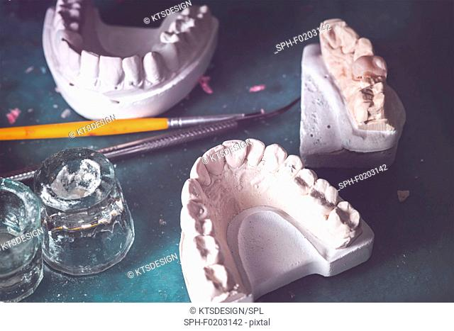 Dental prosthesis in laboratory