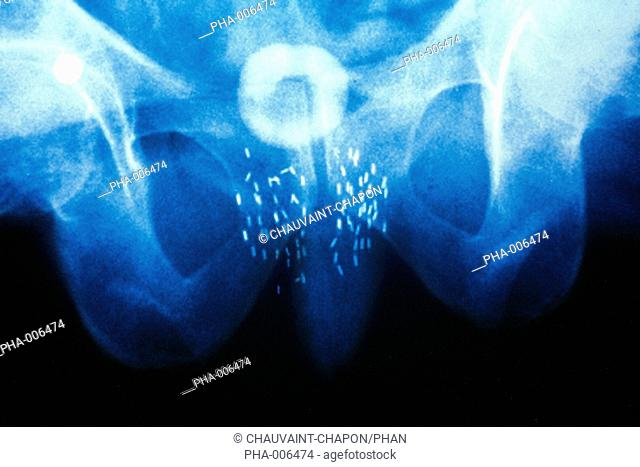 Pelvis X-ray showing a prostate cancer treated with curietherapy or brachytherapy, a type of radiotherapy where radioactive sources are inserted into the area...